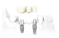 implant6 - Dentiste GROSMAN.jpg